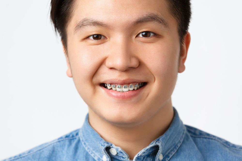 Braces For Adults | Man smiling with braces.